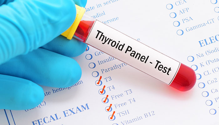 Top 10 labs your thyroid doctor should be checking